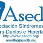 Los síndromes de Ehlers-Danlos