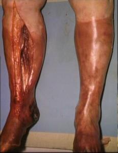 Individuo afectado por gangrena. Así muestra la enfermedad tras un tratamiento en cámara hiperbárica.