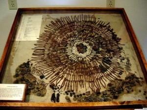 Exposición e inventario del contenido estomacal de un humano afectado por el síndrome de Pica.