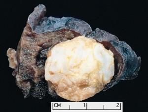 Imagen de un hamartoma pulmonar. Observen el color amarillento de la aforme masa celular.