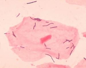 Las bacterias del género Lactobacillus son las más representativas de la microbiota de la vagina.