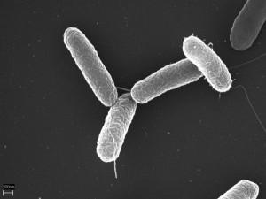 Imagen de Salmonella typhimurium.