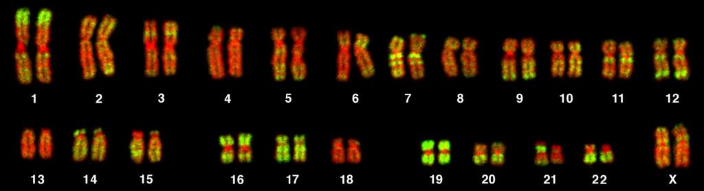 En la imagen, vemos el tamaño del cromosoma 5, relativo al resto de cromosomas. Imagen por Andreas Bolzer, Gregor Kreth, Irina Solovei, Daniela Koehler, Kaan Saracoglu, Christine Fauth, Stefan Müller, Roland Eils, Christoph Cremer, Michael R. Speicher, Thomas Cremer