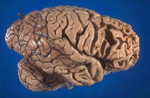 Imagen de un modelo cerebral afectado por la enfermedad de Alzheimer. Obsérvese el ensanchamiento de los surcos cerebrales debido a la pérdida neuronal causada por la enfermedad, el cual le da ese aspecto esponjoso a la estructura cerebral.