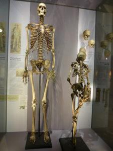 """La osamenta de Charles Byrne se expone al público en el museo Hunter que existe en el Colegio de Cirujanos de Londres. A su lado, se muestra un esqueleto normal al que se conoce como """"Mr. Jeffs""""."""