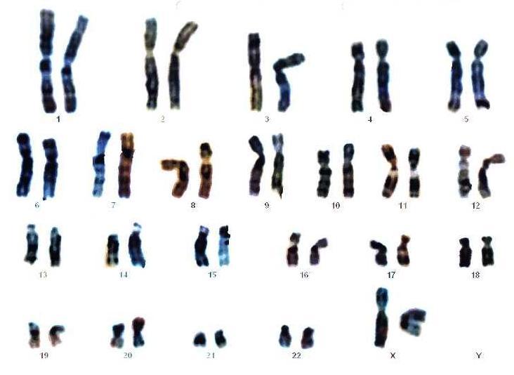 Número cromosómico de una niña